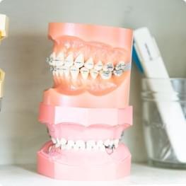 矯正歯科 Orthodontic