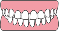 すきっ歯<br>(正中離開・空隙歯列)